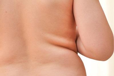 Dickerer Rücken