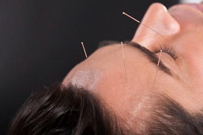 Mann bei einer Akupunktur-Behandlung am Kopf