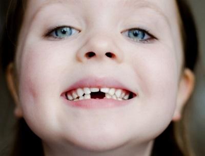 Mädchen mit Zahnlücke bei den Milchzähnen