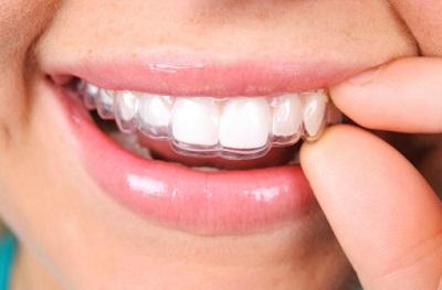 Frau mit Aufbiss-Schiene auf den Zähnen