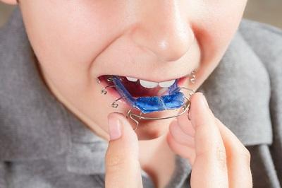 Kind mit blauer Zahnspange