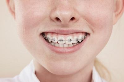 Gebiss eines Mädchens mit Zahnspange