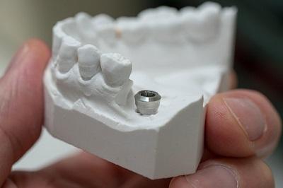 Modell eines Zahnimplantats
