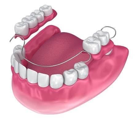 Ohne gaumenplatte zahnprothese Zahnprothese Oberkiefer