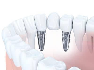 Zahnbrücke - Varianten, Kosten und Behandlungsablauf | CHECK24