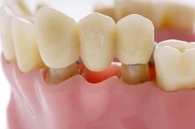 Backenzahn zahnlücke Sanieren statt